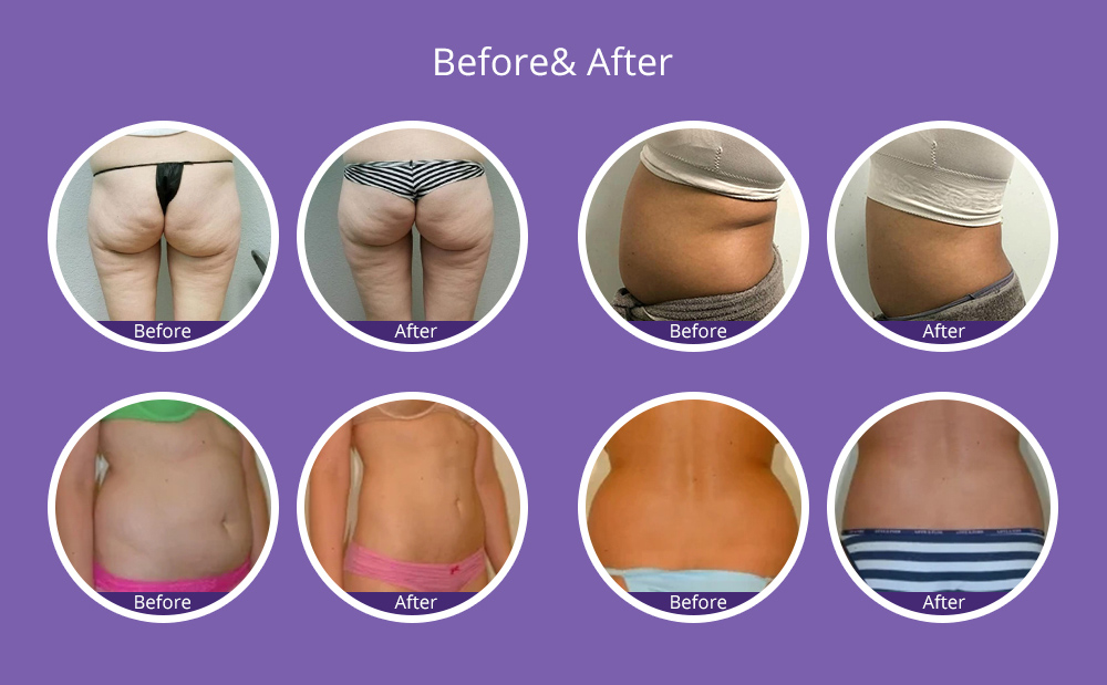 4 Pads Freeze Fat Removal Slimming Cold Freeze
